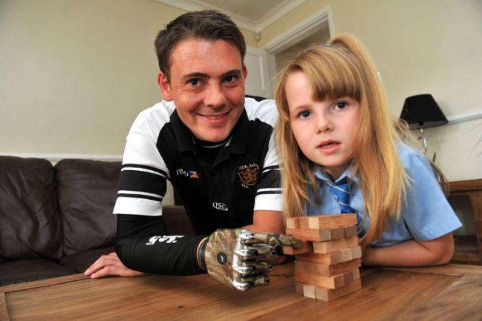 Mike Swainger of Gorsedale, Hull who is one of the first in the country to be fitted with a bionic hand on the NHS.  Mike plays jenga with daughter Jodie, 6.